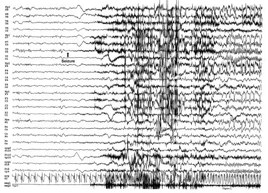 Postoperative Seizure EEG